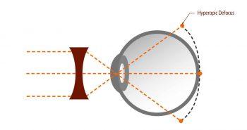 Moderarea progresiei miopiei